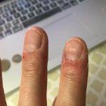 Plus nagelprobleem