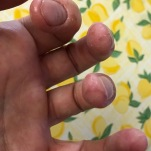 Opperhuid afbladering